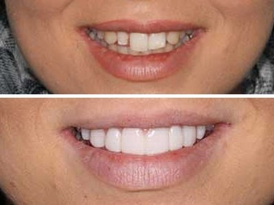Sydney-Dental-Veneers
