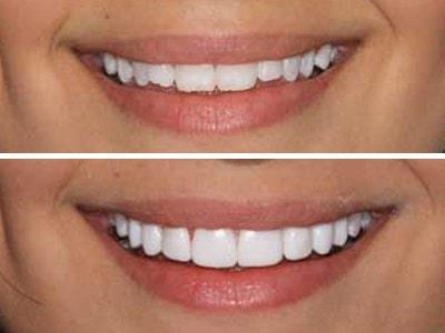 Veneer-Teeth