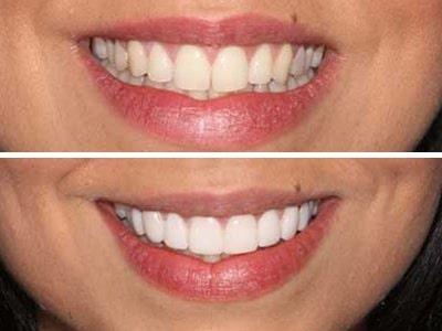 Veneers-Teeth