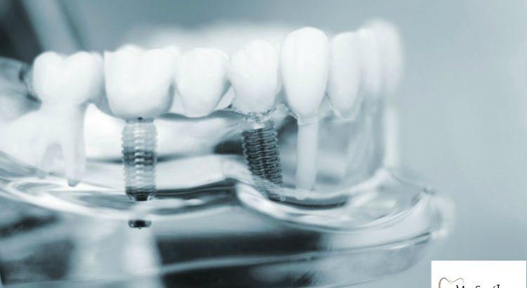 Teeth Implants in Sydney