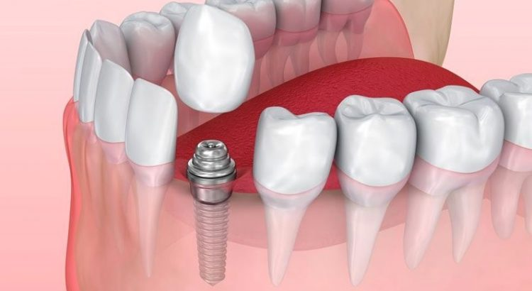 Dental Implant Cost in Sydney