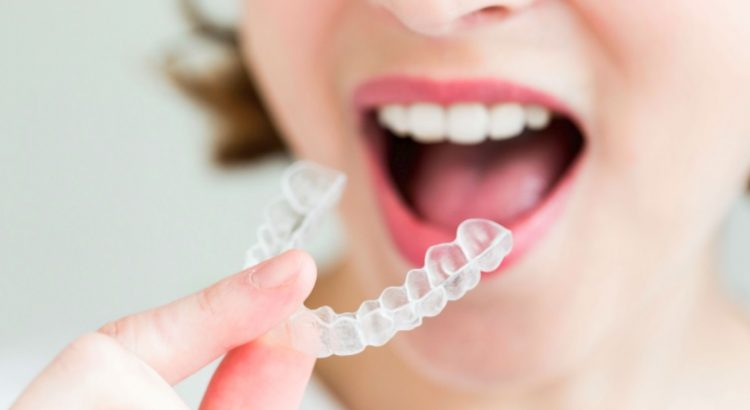 Best Invisalign in Sydney