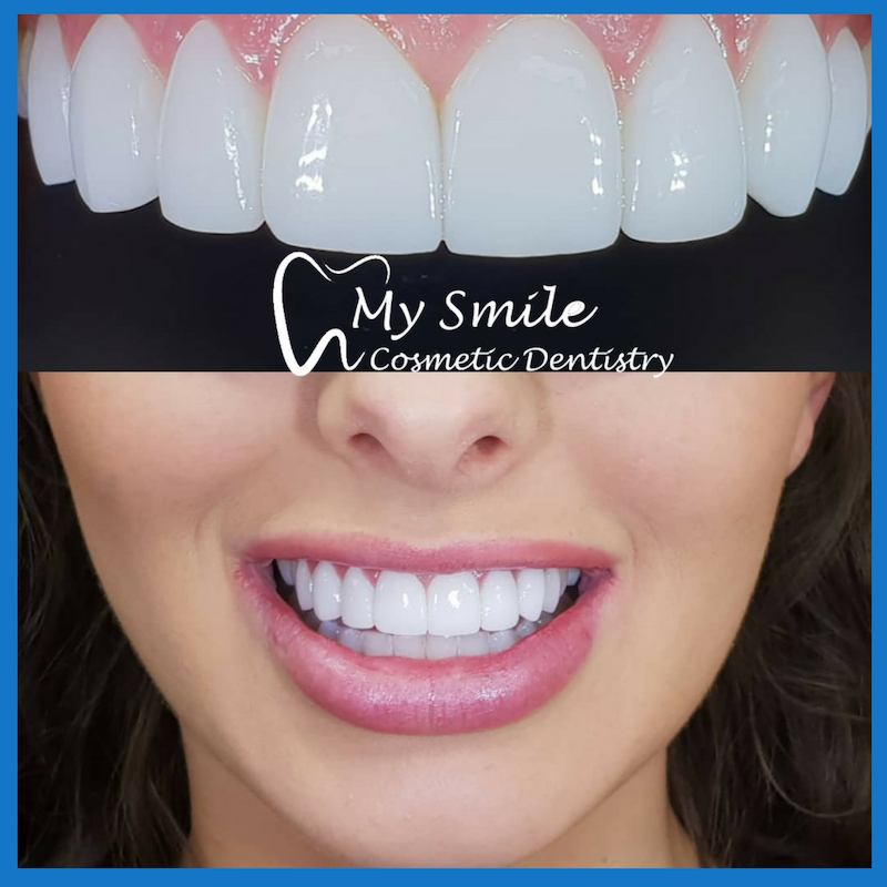 Porcelain veneers in Sydney