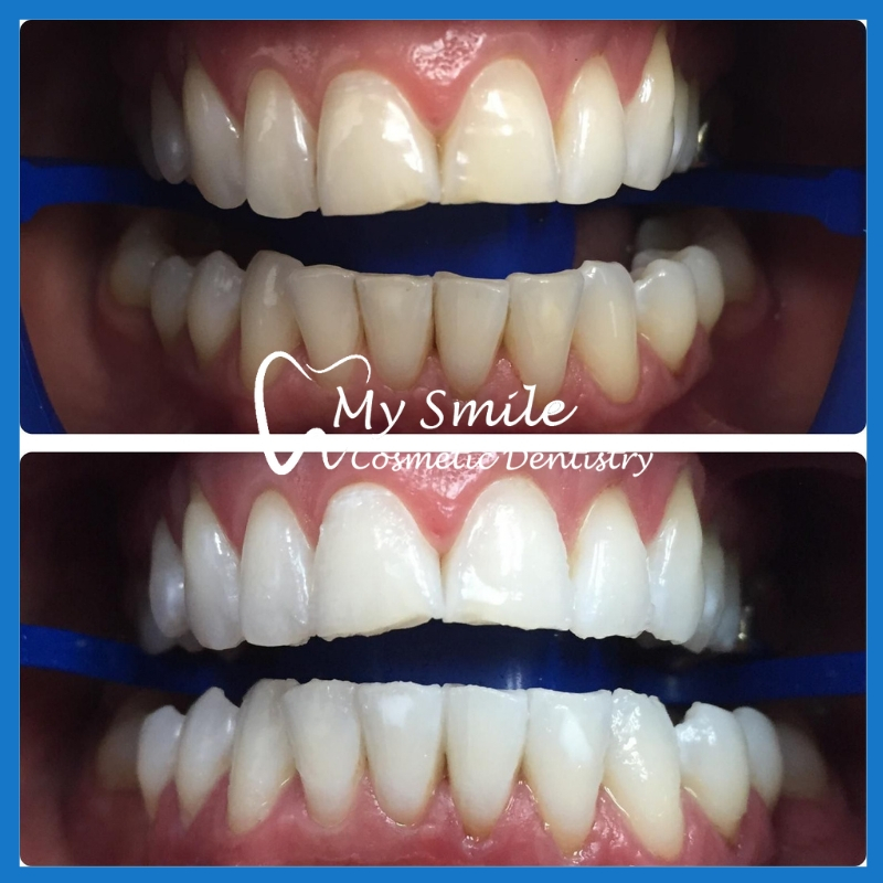High quality teeth whitening in Sydney