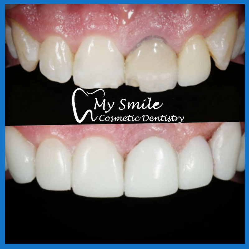 We have the best dentist for dental veneers here in Sydney