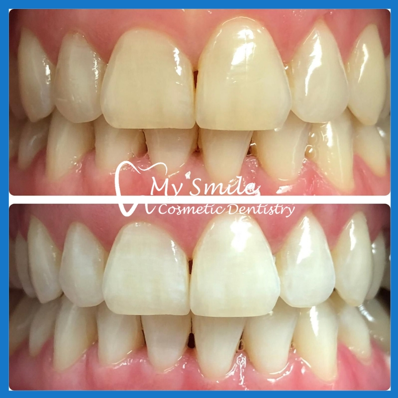 We have the best dentist for teeth whitening in Sydney