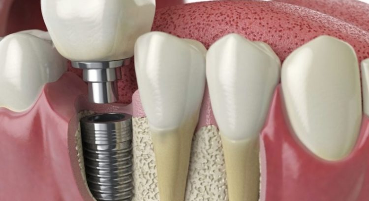 Best dental implants in Sydney