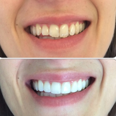 Cosmetic dentistry services in Sydney