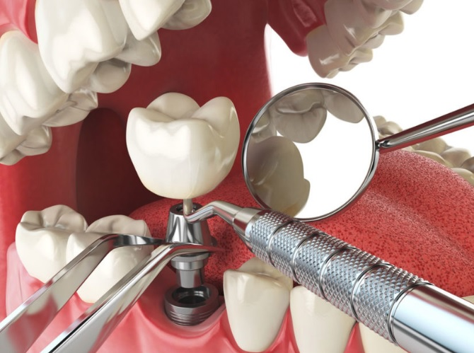 Tooth implant pain in Sydney