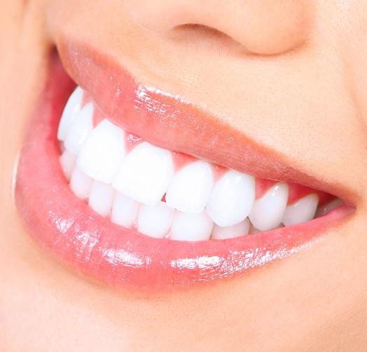 Teeth whitening methods in Sydney