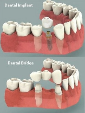 Tooth implant vs bridge in Sydney