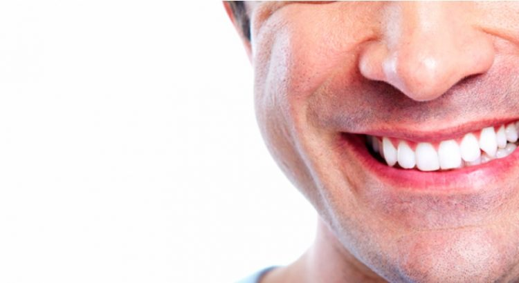 Full mouth dental implants in Sydney