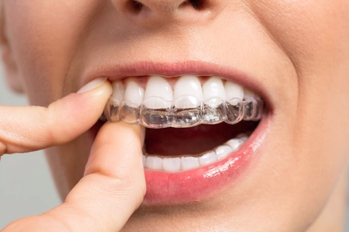 Invisalign vs braces cost in Sydney